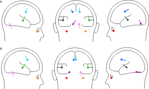 Sagittal and coronal views of source locations for 4 pair model of (A) left and (B) right ear stimulation.