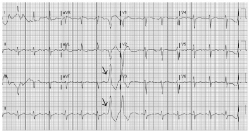 EKG shows normal sinus rhythm with frequent premature ventricular complexes (Arrows).