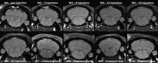 Representative T1w MRI follow-up in the control group revealed no T1 signal hyperintensity in the DCN.