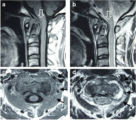 Magnetic resonance imaging on admission. Sagittal imaging (a, b) shows cord compression due to a pseudotumor around the dens (open arrow). Axial imaging shows heterogeneously low signal intensity around the left lateral atlantoaxial joint on T1-weighted imaging (c, arrows) and high signal intensity on T2-weighted imaging (d, arrows)