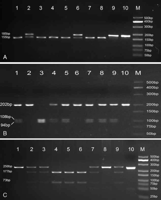 PCR-RFLP assay for analyzing the rs1001179, rs769217, and rs7943316 polymorphisms in CAT gene. (A) rs1001179—lanes M: DNA marker; lanes 1, 3, 4, 5, 7, and 8 show GG genotype; lanes 2 and 6 show AG genotype; lane 9 shows AA genotype; lane 10 shows negative control. (B) rs769217—lanes M: DNA marker; lanes 1, 4, 5, 7, 8, and 9 show CT genotype; lanes 2 and 6 show CC genotype; lane 3 shows TT genotypes; lanes 10 shows negative control. (C) rs7943316—lanes M: DNA marker; lanes 1 and 8 show AA genotype; lanes 2, 3, 7, and 9 show AT genotype; lane 4, 5, and 6 shows TT genotypes; lanes 10 shows negative control. PCR-RFLP = polymerase chain reaction-restriction fragment length polymorphism.
