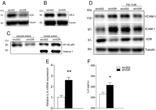 VDR knockdown-induced endothelial cell activation is mediated via NF-κB signaling.EA.hy926 cells (shc002 or shVDR) were untreated (A, B, C) or treated with IκB kinase (IKK) inhibitor PS-1145 (D) for 24 hours. (A, B, D) Whole cell lysates were immunoblotted with antibodies against VDR, IκB-α, VCAM-1 and ICAM-1. The same samples were reprobed with tubulin to ensure equal loading. (C) Western blot analysis of p65 levels in cytosolic and nuclear extracts isolated from shc002 and shVDR endothelial cells. The nuclear protein Histone 1, which is absent in the cytosolic fraction, served as a nuclear protein loading control. (D) Representative Western blot and quantitative analysis (G, H), *p<0.05 vs. shc002 or shVDR, respectivey (E) Real time PCR analysis of IL-6 mRNA in shc002 and shVDR endothelial cells. Data presented are mean ± SEM from 3 independent experiments. **p<0.01 vs. shc002. (F) Determination of IL-6 secretion into the medium by ELISA. Endothelial cells were grown in normal growth media for 72 hours. IL-6 production was determined using a human IL-6 HS ELISA kit. Data presented are mean ± SEM from 3 independent experiments. *p<0.05 vs. shc002.