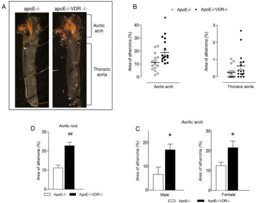 VDR deletion accelerates atherosclerosis in apoE-/- mice.apoE-/- and apoE-/-VDR-/- mice were fed a high fat-rescue diet (HFRD) for 8 weeks. (A) Aortas were stained with Oil-Red O, opened longitudinally and pinned onto a black wax surface. Luminal side of the aorta is displayed, showing red lipid-rich atherosclerotic lesions within aortic arch and thoracic aorta. (B) Quantitative analysis of atherosclerotic lesion size within aortic arch and thoracic aorta. Data presented are mean ± SEM of 14–15 mice/group. *p<0.05 vs. apoE-/-. (C) Quantitative analysis of atherosclerotic lesion size within aortic arch in males and females of apoE-/- and apoE-/-VDR-/- mice. Data presented are mean ± SEM of 10 mice/group *p<0.05 vs. apoE-/-. (D) Quantitative analysis of atherosclerotic lesion size within aortic root. Five cross sections (spanning 640 μm of the aortic root) were analyzed per mouse, as explained in Methods. Data presented are mean ± SEM of n = 10 mice/group. ##p<0.0005.