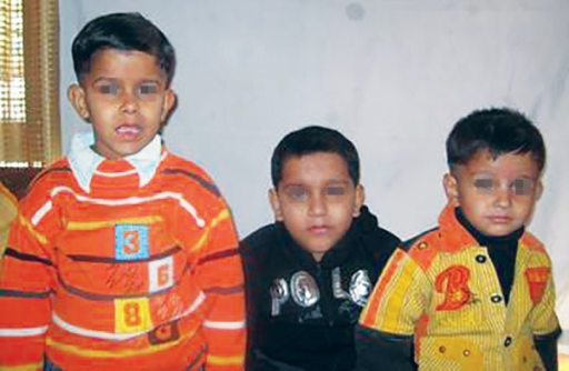 Three male siblings of a family, of which two older children are affected with DMD