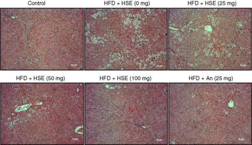 Effects of Hibiscus sabdariffa water extract (HSE) supplement on body weight and adipose tissue in HFD-fed hamsters. H and E staining of liver sections shows various degrees of fat accumulation in hamsters fed a normal diet (control) and hamsters fed with HFD along with different amounts of HSE or 25 mg anthocyanin.