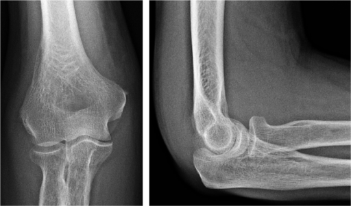 At presentation, soft tissue swelling but preserved articular cartilage and joint space.