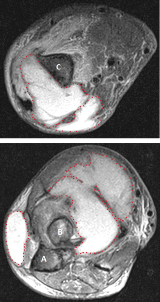 MRI showed a multi-loculated collection at the distal humerus (upper panel) and the proximal radio-ulnar joint (lower panel). Key: A: ulna; B: radius; C: humerus.