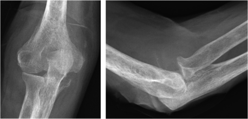 After 2 months; erosion at the olecranon and subluxation of the radial head.