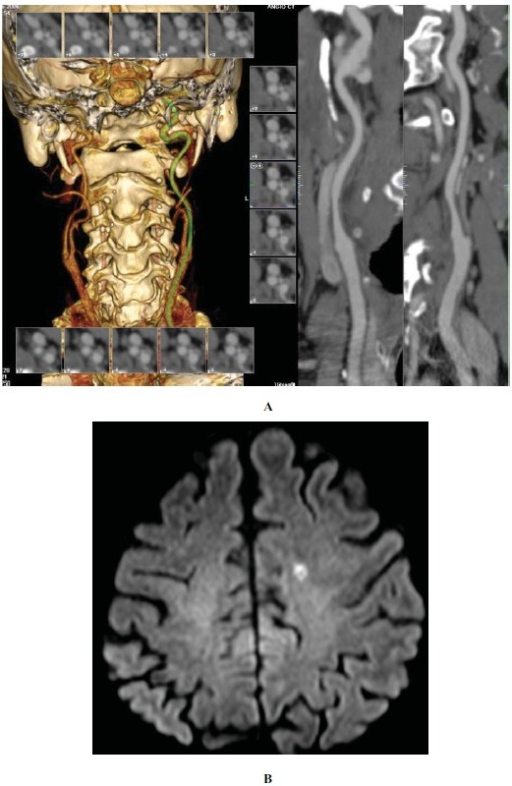 CT and Angio-CT in a patient with carotid stenosis and stroke. Note the calcifications and irregularities in the vascular wall (a). There is an acute infarct on the DWI in the left centrum semi-ovale (b).
