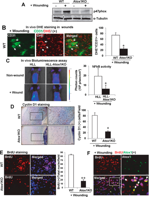 Atox1 is involved in p47phox-ROS-NFkB activation as well as cyclin D1-cell proliferation in wound tissue.(A) p47phox and α-tubulin (loading control) protein expression in wound tissues at day 7 in WT and Atox1−/− mice. (B) Representative images for CD31 staining (green), DHE fluorescence (red), and their merged images (yellow) in wound tissues at day 7 after wounding in WT mice. DHE+/CD31+ ECs (yellow) are shown in white arrows. Right panel shows mean ± SE of CD31+/DHE+ cells in WT and Atox1−/− mice (n = 3, *p < 0.05 vs. WT). Scale bars = 10 μm (C) Representative bioluminescence images of back skin of NFkB activity reporter mice (HLL mice) and HLL/Atox1 KO mice before and at 7 day after wounding (n = 3)(left) and a graph representing mean ± SE of bioluminescence intensity (n = 3, *p < 0.05 vs. HLL). (D,E) Cell proliferation in wounds were assessed by Cyclin D1 staining, Scale bar = 50 μm (left images); scale bar = 10 μm (right images). (D) and BrdU with DAPI (blue, nuclear marker) staining (E) at day 5 after wounding in WT and Atox1−/− mice. Graphs represents mean ± SE of cyclin D1+ cells and BrdU+ cells (n = 3, *p < 0.05; **p < 0.01 vs WT) (F) Immunofluorescence showing co-localization of BrdU+ cells (red) and Atox1 (Green) in the nucleus in dermal region at day 5 after wounding in WT mice. Scale bars = 10 μm.