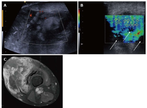 Pleomorphic sarcoma of the distal thigh. Transverse B mode image with colour Doppler (A) shows a disorganised tumour with wide variation in echotexture and limited Doppler flow. The shear wave velocity elastogram (B) also shows a wide variation in stiffness with some regions of absent measurements, seen as the black areas on the image (arrow), possibly owing to the very dense/stiff nature of the tumour. The axial proton density fat suppressed magnetic resonance image (C) shows a large tumour in the anterior compartment of the thigh with very varied signal.