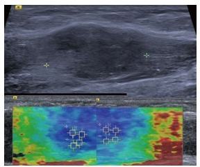 Intramuscular nodular fasciitis, longitudinal images. The B mode image (upper image) shows that the margins of the lesion are poorly defined and relatively hard to discern. The shear wave velocity elastograms (lower images) show a clear difference in stiffness between the lesion and adjacent normal muscle fibres, as shown by the blue (slow) colour map of the lesion compared with the green and red (faster) colour map of the adjacent muscle fibres.