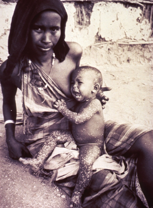 <p>A woman is sitting on the ground, she holds an infant who is covered with smallpox scabs on her lap.</p>