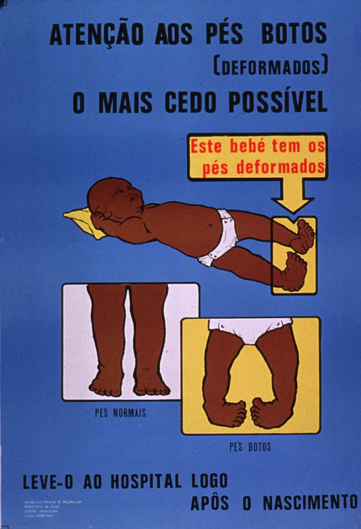 <p>Predominantly bright blue poster with multicolor lettering.  Title at top of poster.  Note text below points out clubbed feet on an illustration of a baby lying on its back.  Additional illustrations include a close-up of normal feet and a close-up of clubbed feet.  Caption below illustration encourages going to the hospital soon after birth.  Publisher information in lower left corner.</p>