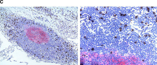 Follicular TCR β-chain sequences preferentially derive from CD8 T cells. Synovial tissue was selected from five patients with RA who had multiple ectopic GCs in the synovial membrane. (A) The distribution of CD4 T cells (left), CD20 B cells (middle), and IgD+ cells (right) is shown in a representative example. The mantle zone is indicated by an asterisk (right). Follicles were microdissected and TCR β-chain sequences were obtained (Tables II and III). In parallel, synovial tissue and peripheral CD4 and CD8 cells were purified by FACS®. cDNA was tested for the presence of these TCR β-chain sequences by PCR-ELISA using N-D-N–specific oligonucleotides as probes. (B) In four of the five patients, the majority of the TCR β-chain sequences were detected in the CD8, and not the CD4, population. (C) To define the localization of the CD8 cells in synovial follicles, tissue sections were stained with anti-CD8 (brown) and anti-CD23 (red, expressed on follicular dendritic cells) mAb. CD8 T cells were found in the perifollicular zone, sometimes within the mantle zone, and only occasionally in the GC. Original magnifications: (left) × 100 and (right) × 400.