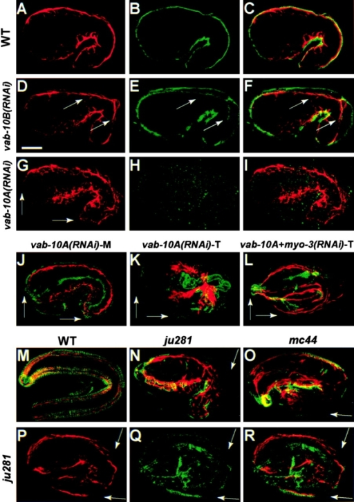 Integrity and attachment defects in vab-10 mutants. Confocal projections after staining mid-stage (A–J and P–R) or terminal-stage embryos (K–O) with the muscle-specific mAb NE8/4C6 (red) and VAB-10A 4F2 antibodies (green; A–I and M–O) or VAB-10B K22 antibodies (green; J–L and P–R); C, F, I, and R correspond to merged images of A and B, D and E, G and H, and P and Q, respectively. (A–C) Wild-type embryo; muscles are adjacent to the epidermis and the outer surface. (D–F) vab-10B(RNAi) embryo; the epidermal layer is enlarged, although muscles remain adjacent to the basal layer of the epidermis (arrows). (G–K) vab-10A(RNAi) embryos; muscles always occupied normal positions at mid-embryogenesis extending to the tip of the head and tail (G and J, arrows), but subsequently detached and collapsed to the center of the embryo in 90% of the cases (K, n = 70). (L) Simultaneous RNAi against vab-10A and myo-3 (myosin heavy chain gene); muscles remained attached in the head and tail in 74% of the embryos (n = 69). (M) Wild-type embryo. (N) vab-10A(ju281) and (O) vab-10B(mc44) embryos; VAB-10A is almost absent where muscles have detached (arrows), which occurred in >65% vab-10B(mc44) embryos and 81% vab-10A(ju281) embryos (n > 50). (P–R) vab-10A(ju281) embryo; in some areas (arrows) muscles have detached, causing localized loss of VAB-10B staining (a control embryo costained for K32 and NE8/4C6 antibodies is shown in Fig. 4, H and K).