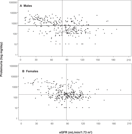 Distribution of proteinuria and eGFR. The median values for eGFR are shown as vertical lines, and the median 24-h urine protein is shown as horizontal lines in both panels. A) Males, n = 300, median eGFR = 81.0 mL/min/1.73 m2, and median proteinuria = 572 mg/24 h. B) Females, n = 306, median eGFR = 88.0 mL/min/1.73 m2, and median proteinuria = 180 mg/24 hr. Data from the Fabry Registry reproduced with permission from Ortiz A, Oliveira JP, Waldek S, et al 2008. Nephropathy in males and females with Fabry disease: cross-sectional description of patients before treatment with enzyme replacement therapy. Nephrol Dial Transplant, 23:1600–7. Copyright © 2008 Oxford University Press.