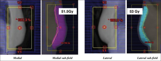 Medial field and sub-field BEV with 51.5 Gy iso-dose display; Lateral field and subfield BEV with 53Gy iso-dose display. Maximum dose in the volume is 55 Gy (110%) before inclusion of subfields
