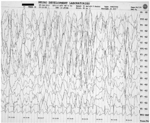 Scalp electroencephalogram showing disorganized background with generalized spike-wave discharges 2–2.5/second occupying more than 80% of tracing, consistent with nonconvulsive status epilepticus (Case  1).