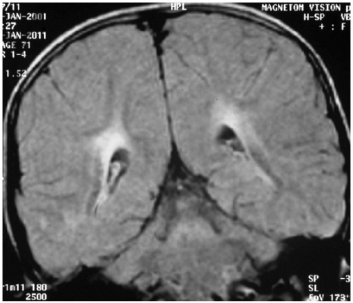 Magnetic resonance imaging of the brain (fluid attenuated inversion recovery sequence, coronal section) showing periventricular hyperintensities involving bilateral parieto-occipital white matter (Case  1).