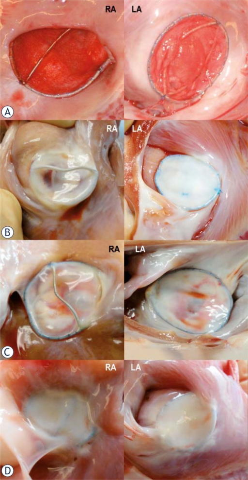 Gross specimens of the deployed double Biodisks into the adult sheep ASDs.A. Three hours after deployment, thin layers of early thrombus cover right and left atrium disk of the 28 mm device.B. At 3 months, the 18 mm DBD is almost completely incorporated into myocardium. Glistening disk surfaces indicate complete endothelization.C. At 6 months, the DBD is almost completely incorporated into myocardium of the right and left atrium.D. At 12 months, the DBD is completely incorporated into myocardium of the right and left atrium.
