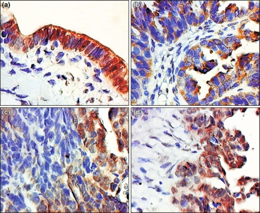 Immunohistochemical localization of MRP2 expression in: a normal fallopian tube epithelium, b–d primary fallopian tube carcinomas (hematoxylin, ×400)