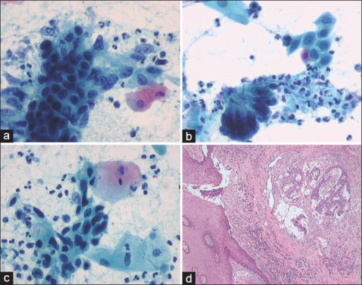 "(a) A malignant tumor cell cluster (Pap, ×400); (b) The cell group in the left bottom shows nuclear pseudostratified strip reminiscent of short ""bird tail like"" arrangement (Pap, ×400); (c) Spindle shaped tumor cells (Pap, ×400); (d) Adenocarcinoma in submucosa (H and E, ×100)"