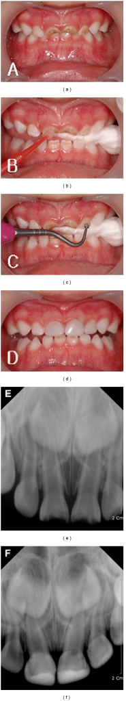 (a) Oral status of the patient before treatment, (b) application of Carigel, (c) removal of dental caries, (d) restoration with RelyX Unicem, (e) radiograph of the patient before treatment, and (f) radiograph of the patient treatment after 8 month.
