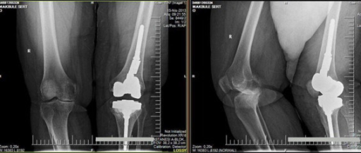 Postoperative AP and lateral radiographs after the revision knee arthroplasty.