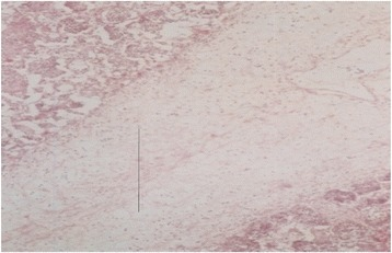 Histological section of a lung of a PPR infected goat. Accumulation of fibrin (line) and infiltration of inflammatory cells in the lung parenchyma, H&E X 82.5.