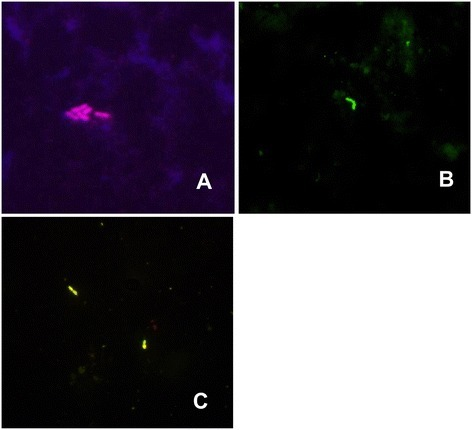 Picture from a fluorescence microscope, obtained with the use of FISH: (A)visibleK. pneumoniaebacteria (sample no. 67);(B)visibleStreptococcusspp. bacteria (sample no. 35);(C)visibleE. cloacaebacteria (sample no. 13). Magnification 1000 x.