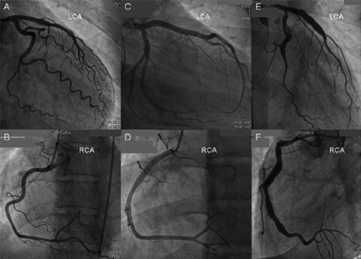 how to read coronary angiogram