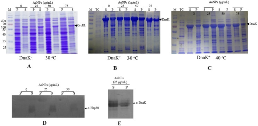 Expression and solubility profiles of E. coli BB1553 cells exposed to AuNPs.SDS-PAGE analysis representing protein expression and solubility profiles of E. coli BB1553 cultured in the absence and presence of AuNPs (25–75 μgmL-1). Various fractions of E. coli cells were obtained: (A) E. coli DnaK- cells cultured at 30°C in the absence and presence of variable AuNPs; (B) E. coli DnaK+ cells cultured at 30°C in the absence and presence of variable levels of AuNPs; (C) E. coli DnaK+ cells cultured at 40°C in the absence and presence of variable levels of AuNPs. Lanes representing total cell lysate (TC); cell pellet (P) and soluble (S) fractions, respectively, are shown. Western blot analyses were conducted to confirm production of heterologously expressed DnaK (D); and endogenous GroEL (E). Pellet and soluble fractions of E. coli BB1553 that had been exposed to AuNPs at the given concentrations were sampled for the Western analyses.