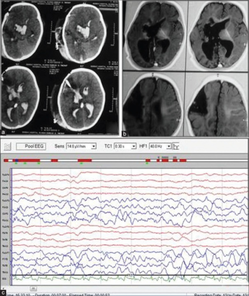 (a) Computed tomography brain (axial view) after first surgery showing intraventricular hemorrhage (b) Magnetic resonance imaging brain (T1-weighted images) after first surgery showing incomplete disconnection between the two hemispheres. (c) Electroencephalogram (post first surgery) showing asymmetry between two hemispheres without any epileptiform discharges
