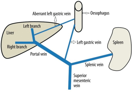 Image Showing Normal Porto Venous Drainage Of The Left Open I