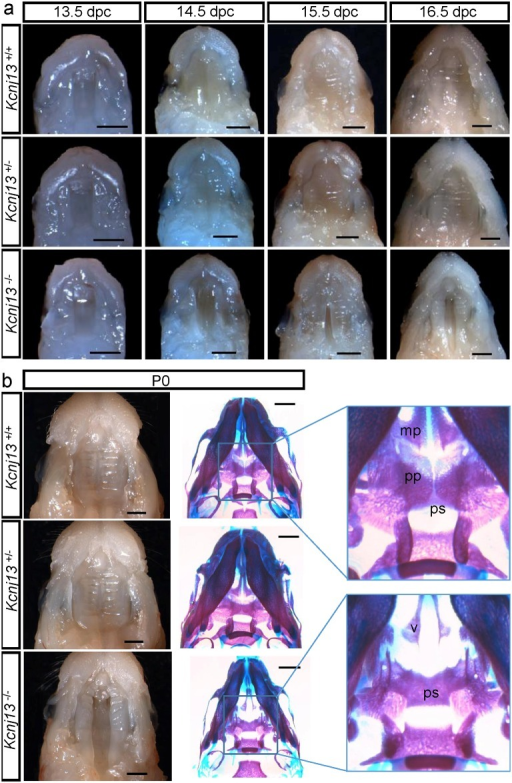 Palate formation during embryonic development in Kcnj13+/+, Kcnj13+/- and Kcnj13-/- mice.a. Dissected midfacial segments (without brain, mandible and tongue) from mouse heads collected from embryos 13.5–16.5 dpc. b. Mouse heads on postnatal day (P0) with dissected midfacial segments (left) and alizarin red and alcian blue skeletal staining (right). The palatine (pp) and maxillary (mp) processes are indicated In the Kcnj13-/- specimen both the presphenoid (ps) and the vomer (v) are visible. Bar, 1 mm.