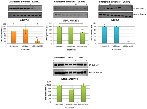 LRP expression in WHCO1, MDA-MB 231 and MCF-7 cells 72 h post-transfection.WHCO1 and MCF-7 cells were transfected with siRNA-LAMR1 and MDA-MB 231 cells with siRNA-LAMR1 and esiRNA RPSA. Densitometric analysis of the western blot signals revealed significant (p < 0.05, n = 3) differences in LRP expression inWHCO1, MDA-MB 231 and MCF-7 cells, respectively (compared to non-transfected cells). Error bars represent standard deviation.