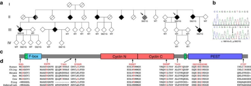 CCNF mutations in ALS-FTD identified following genetic linkage analysis and exome sequencing.(a) Pedigree of family FALS10. All family members from whom DNA was available for genotyping are indicated by either wild type (WT) for CCNF, or by mutation in CCNF ('S621G'). Individuals with ALS are represented by a black-filled symbol, individuals with FTD by a grey-filled symbol. Arrows indicate samples used for exome sequencing. (b) Sequence traces of WT and c.1861A>G mutation identified in family FALS10. (c) Diagrammatic representation of cyclin F protein and the location of novel mutations identified in this study. Cyclin F contains three functional modules within its protein structure. The F-box domain forms a 'pseudocatalytic' module, the two cyclin domains form the substrate recruitment module and the C terminus contains both a nuclear localization signal (NLS) and a PEST sequence (short stretch of amino acids enriched in proline, glutamic acid, serine and threonine) that form the regulatory module16. (d) Multiple sequence alignment of cyclin F across species showing evolutionary conservation of the substituted amino-acid residues (indicated by arrows). Sequences include NP_001752.2 (human), NP_001252844.1 (chimpanzee), NP_031660.3 (mouse), NP_001093944.1 (rat), NP_001092340.1 (cow), NP_001079901.1 (frog) and NP_996931.1 (zebrafish).