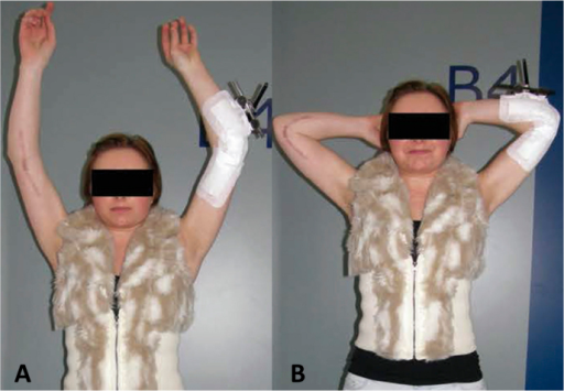 A and B. Postoperatively, with external fixator in place on the left side for guided and unloaded movement. Elbow extension was still restricted to 40 degrees on the left side at this time.