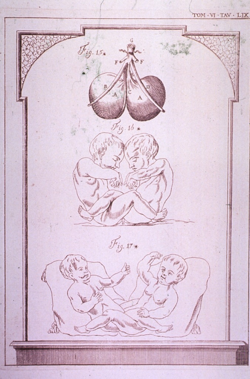 <p>Two views of the complete bodies of conjoined twins joined at the genito-urinary area.  A third view shows a divided bladder with a common urethra.</p>
