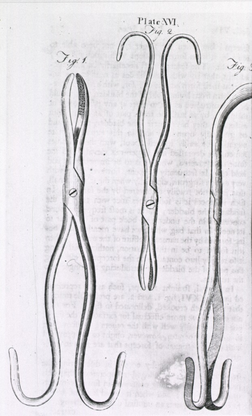 <p>Forceps with small jaws and large curving handles used for removal to stones.</p>