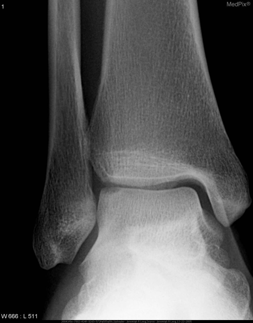 Coned down radiograph of the right ankle in the frontal projection demonstrates a cortical lucency at the superior and lateral aspect of the talar dome.