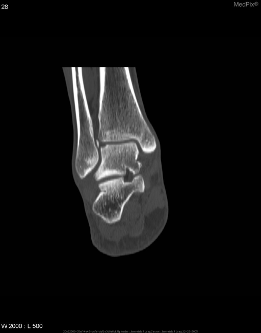 Noncontrast CT image of the talus demonstrates a shallow, rounded cortical defect within the superior lateral talar dome and an adjacent fragment of bone within the ankle joint.