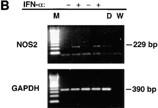 (A) Immunoblot  analyses of extracts of mononuclear cells treated in vitro with  IFN-α. Cells were cultured with  (+) or without (−) 500 U/ml of  IFN-α for 3 d. Extracts were  then made as described in the  Methods section, and equivalent  amounts of cellular protein were  analyzed. Antibody anti-MacNOS was used. Cells from two  separate, normal individuals were  analyzed. Analysis of the first is  shown in lanes 1 and 2, and that  of the second is in lanes 3 and 4.  DLD-1 + signifies extracts from  the human colon cancer cell line DLD-1 treated with IFN-γ, IL-1, and  TNF in vitro. Results demonstrate that IFN-α treatment induces NOS2  antigen expression. (B) RT-PCR analysis of mRNA of mononuclear  cells treated in vitro with IFN-α. Cells from two separate, normal individuals were cultured with (+) or without (−) 500 U/ml of IFN-α for  12 h. RNA was extracted and analyzed as described in the Methods section for NOS2 and glyceraldehyde-3-phosphate dehydrogenase mRNA.  M, molecular weight markers; D, cells of the human colon cancer cell  line DLD-1 treated with IFN-γ, IL-1, and TNF; and W, distilled water.