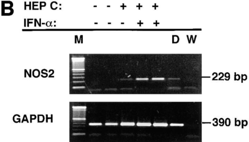 (A) Immunoblot  analyses of extracts of blood  mononuclear cells from hepatitis  C patients before and after IFN-α  treatment. Equivalent amounts  of cellular protein were analyzed  in each lane. Antibody 1E8-B8  was used. Samples from patients  one through four were collected  before IFN-α treatment (pre– IFN-α) or after receiving IFN-α  in vivo (post–IFN-α). Controls  for human NOS2 were from the  human colon cancer cell line DLD-1 without (−) or with (+) treatment  with IFN-γ, IL-1, and TNF in vitro. (B) RT-PCR analysis of mononuclear cells from normal subjects, patients with hepatitis C, and patients  with hepatitis C treated in vivo with IFN-α. Cells were isolated, frozen,  extracted, and analyzed as noted in the Methods section. Cells from the  two normal subjects (HEP C − and IFN-α −), one patient with hepatitis  C (HEP C + and IFN-α −), and two patients with hepatitis C on treatment with IFN-α (HEP C + and IFN-α +) were analyzed. M, molecular  weight markers; D, cells of the human colon cancer cell line DLD-1 treated  with IFN-γ, IL-1, and TNF; and W, distilled water.