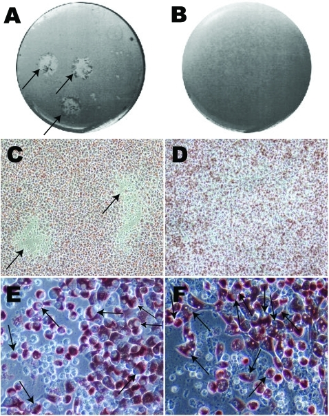 Photographs and optical microscopy views of the wells showing plaques formed by Chlamydia trachomatis F/IC-Cal3 (A, C, E) and no plaque formed by clinical F persistent strain (B, D, F). A) Single well showing 2 distinct plaques (indicated by arrows). B) Well showing no plaque morphology. C) and D) Optical microscopy image showing plaque areas with little or no neutral red staining (arrows) surrounded by viable cells stained red (magnification ×100). Higher magnification (×400) showed numerous cells that had been infected by reference strain F/IC-Cal3 (E) and the clinical persistent F strain (F).