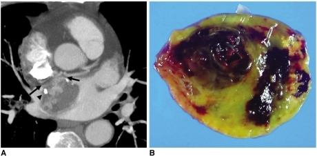 Left atrial myxoma in 65-year-old male.A. Reformatted ECG-gated multidetector CT image shows left atrial mass attached to interatrial septum by broad pedicle (arrows). Note strong contrast enhancement in part of mass with foci of calcification (arrowhead).B. Gross specimen shows myxoid soft tissue mass with pale yellow and dark brown colors, which probably represent mixture of hemorrhage, necrosis, cyst formation and fibrosis.