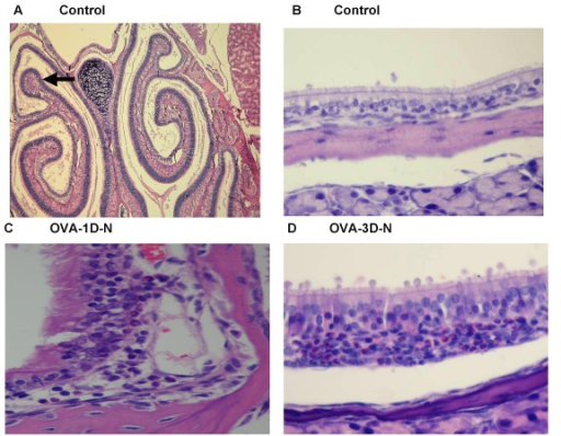 Representative hematoxylin and eosin-stained nasal mucosa collected after airway responsiveness measured by Penh measurements. (A) Light Microscopic image (50 fold magnification) of Control mice. (B) Magnification of (A), 400 fold magnification. (C) OVA sensitized with single-dose OVA challenge, airway responsiveness was carried out by Penh measurements. (D) OVA sensitized with three-dose OVA challenge, airway responsiveness was carried out by Penh measurements.
