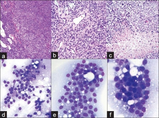 a-c). Histology of recurrent pituitary neoplasm. Dense, highly cellular sheets and nests of monotonous cells with ovoid nuclei and focal clear cell features. Tumor is highly vascular. Areas of necrosis; d-f) Cytology of pituitary carcinoma. FNA of the liver lesion. d, e) 20x; F. 40x: Loose clusters and microacini of monotonous, moderate size cells with eccentrically located, round to oval, mildly pleomorphic nuclei with coarsely granular chromatin and small nucleoli. Cytoplasm is ill-defined due to its fragility