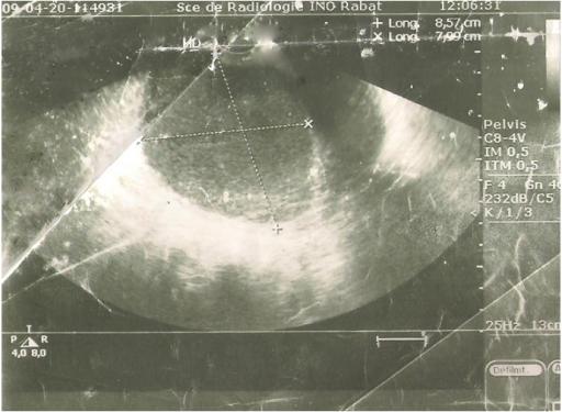 Image D Uterus Etcolon